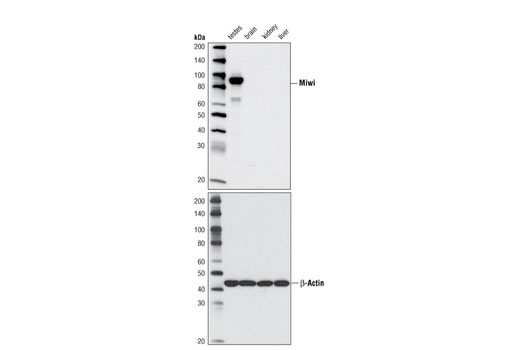 Western blot analysis of extracts from various mouse tissues using Miwi (G82) Antibody (upper panel) or β-Actin Antibody (#4967) (lower panel).