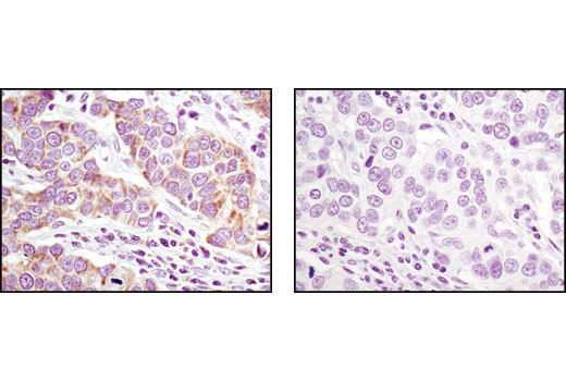 Immunohistochemical analysis of paraffin-embedded human breast carcinoma using MRPL11 (D68F2) XP<sup>®</sup> Rabbit mAb in the presence of control peptide (left) or antigen-specific peptide (right).