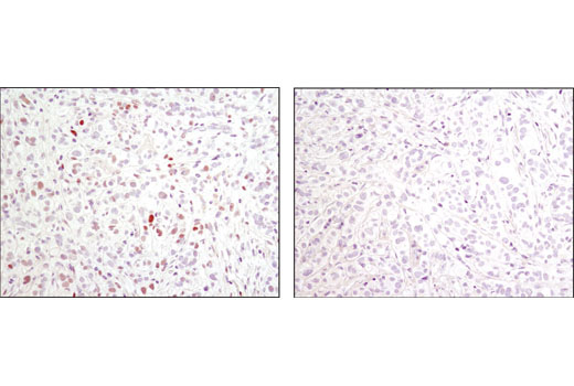 Immunohistochemical analysis of paraffin-embedded human breast carcinoma, control (left) or lambda phosphatase-treated (right), using Phospho-c-Jun (Ser73) (D47G9) XP<sup>®</sup> Rabbit mAb.