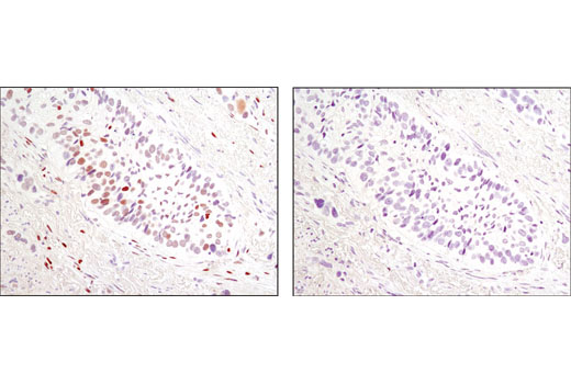 Immunohistochemical analysis of parafin-embedded human colon carcinoma using Phospho-c-Jun (Ser73) (D47G9) XP<sup>®</sup> Rabbit mAb in the presence of control peptide (left) or Phospho-c-Jun (Ser73) Blocking Peptide (right).