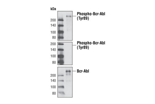 Western blot analysis of extract from CML-T1 leukemic cells with Phospho-c-Abl (Tyr89) (61A6) Rabbit mAb (upper and middle) or c-Abl Antibody #2862 (lower). The phospho-specificity of this rabbit mAb was verified by treating the membrane with calf intestinal phosphatase (CIP) (middle and lower) before antibody probing.