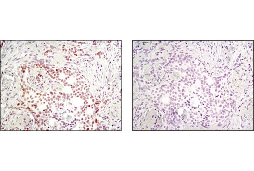 Immunohistochemical analysis of paraffin-embedded human breast carcinoma using MSH2 (D24B5) XP<sup>®</sup> Rabbit mAb in the presence of control peptide (left) or antigen-specific peptide (right).