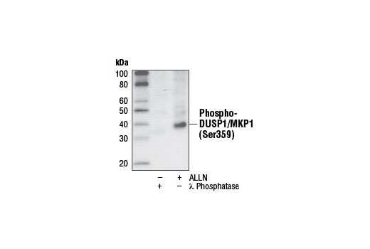 Western blot analysis of extracts from HeLa cells, treated with λ Phosphatase or ALLN, using Phospho-DUSP1/MKP1 (Ser359) (125E2) Rabbit mAb.