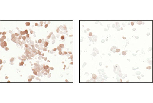 Immunohistochemical analysis using Phospho-4E-BP1 (Thr37/46) (236B4) Rabbit mAb on SignalSlide (TM) Phospho-Akt (Ser473) IHC Controls #8101 (paraffin-embedded LNCaP cells untreated (left) or LY294002-treated (right)).