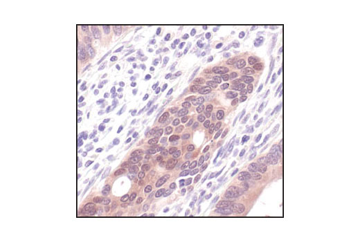 Immunohistochemical analysis of paraffin-embedded human colon carcinoma using Phospho-4E-BP1 (Thr37/46) (236B4) Rabbit mAb.