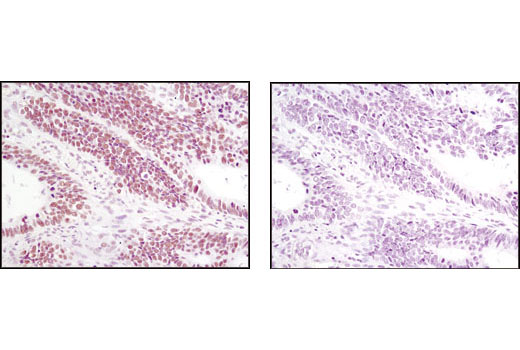 Immunohistochemical analysis of paraffin-embedded human colon carcinoma using JMJD1B (C6D12) Rabbit mAb in the presence of control peptide (left) or antigen-specific peptide (right).