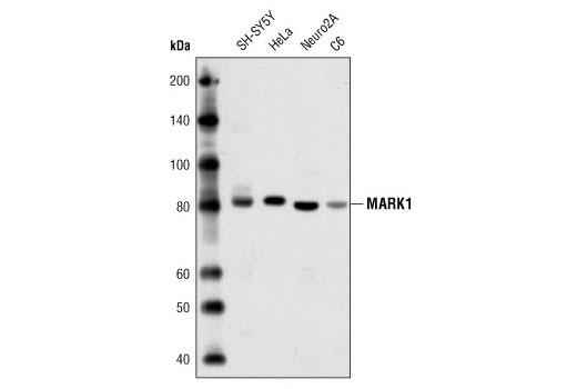 Polyclonal Antibody - MARK1 Antibody - Western Blotting, UniProt ID Q9P0L2, Entrez ID 4139 #3319 - #3319