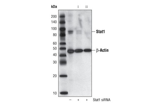 SignalSilence® Stat1 siRNA II - Transfection, UniProt ID P42224, Entrez ID 6772 #6544 - Immunology and Inflammation