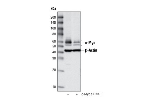 Western blot analysis of extracts from HeLa cells, transfected with 100 nM SignalSilence<sup>®</sup> Control siRNA (Fluorescein Conjugate) #6201 (-) or SignalSilence<sup>®</sup> c-Myc siRNA II (+), using c-Myc Antibody #9402 and β-Actin (13E5) Rabbit mAb #4970. c-Myc Antibody confirms silencing of c-Myc expression and β-Actin (13E5) Rabbit mAb is used to control for loading and specificity of c-Myc siRNA.