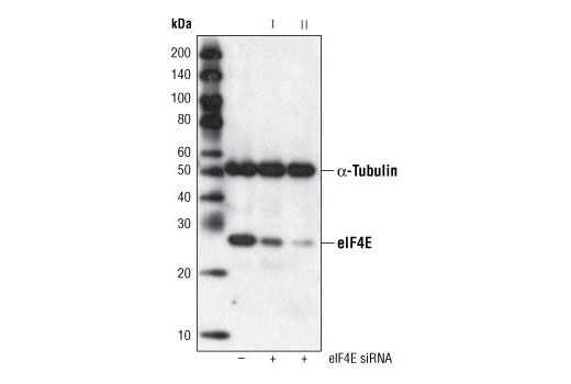 Western blot analysis of extracts from HeLa cells, transfected with 100 nM SignalSilence<sup>®</sup> Control siRNA (Fluorescein Conjugate) #6201 (-) or SignalSilence<sup>®</sup> eIF4E siRNA I #6311 or SignalSilence<sup>®</sup> eIF4E siRNA II #6554 (+), using eIF4E (C46H6) Rabbit mAb #2067 and α-Tubulin (11H10) Rabbit mAb #2125. The eIF4E (C46H6) Rabbit mAb confirms silencing of eIF4E expression and α-Tubulin (11H10) Rabbit mAb is used to control for loading and specificity of eIF4E siRNA.