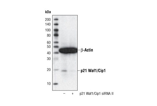 Western blot analysis of extracts from HeLa cells, transfected with 100 nM SignalSilence<sup>®</sup> Control siRNA (Fluorescein Conjugate) #6201 (-) or SignalSilence<sup>®</sup> p21 Waf1/Cip1 siRNA II (+), using p21 Waf1/Cip1 (12D1) Rabbit mAb #2947 and α-Tubulin (11H10) Rabbit mAb #2125. The p21 Waf1/Cip1 (12D1) Rabbit mAb confirms silencing of p21 Waf1/Cip1 expression and α-Tubulin (11H10) Rabbit mAb is used to control for loading and specificity of p21 Waf1/Cip1 siRNA.