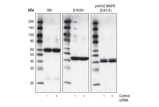SignalSilence® Control siRNA (Unconjugated) - Transfection - 150 µl #6568 - Related Products
