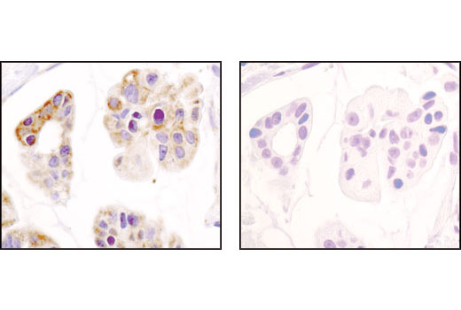 Immunohistochemical analysis of paraffin-embedded human breast carcinoma using Hexokinase I (C35C4) Rabbit mAb in the presence of control peptide (left) or antigen-specific peptide (right).