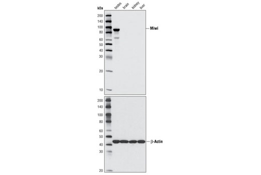 Western blot analysis of extracts from various mouse tissues using Miwi (D478) Antibody (upper panel) or β-Actin Antibody #4967 (lower panel).