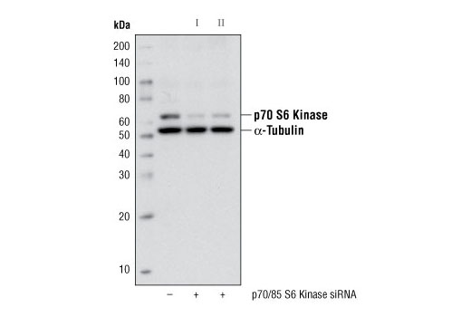 Western blot analysis of extracts from HeLa cells, transfected with 100 nM SignalSilence<sup>®</sup> Control siRNA (Unconjugated) #6568 (-), SignalSilence<sup>®</sup> p70/85 S6 Kinase siRNA I (+) or SignalSilence<sup>®</sup> p70/85 S6 Kinase siRNA II #6572 (+), using p70 S6 Kinase (49D7) Rabbit mAb #2708 and α-Tubulin (11H10) Rabbit mAb #2125. The p70 S6 Kinase (49D7) Rabbit mAb confirms silencing of p70/85 S6 kinase expression, while the α-Tubulin (11H10) Rabbit mAb is used to control for loading and specificity of p70/85 S6 kinase siRNA.