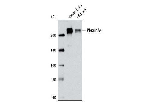 Western blot analysis of extracts from mouse brain and rat brain using Plexin A4 (C5D1) Rabbit mAb.