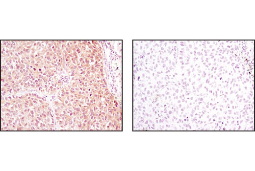 Immunohistochemical analysis of paraffin-embedded human lung carcinoma using NME1/NDKA (D98) Antibody in the presence of control peptide (left) or antigen-specific peptide (right).