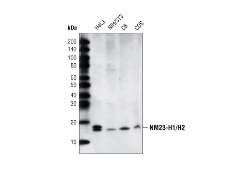 Western blot analysis of extracts from various cell lines using NME1/NDKA (D98) Antibody.