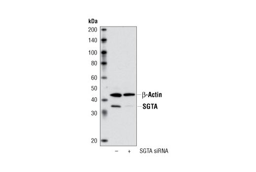 Polyclonal Antibody - SGTA Antibody - Western Blotting, UniProt ID O43765, Entrez ID 6449 #3349 - Protein Folding and Trafficking