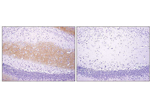 Immunohistochemical analysis of paraffin-embedded rat brain using TrkC (C44H5) Rabbit mAb (left) compared to concentration matched Rabbit (DA1E) mAb IgG XP(R) Isotype Control #3900 (right).