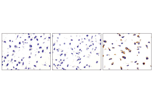 Immunohistochemical analysis of paraffin-embedded NIH/3T3/TrkA (left), NIH/3T3/TrkB (middle) and NIH/3T3/TrkC (right) cell pellets using TrkC (C44H5) Rabbit mAb.