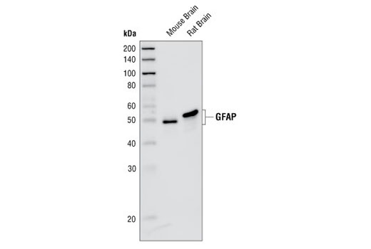 Western blot analysis of extracts from mouse and rat brain, using GFAP (GA5) Mouse mAb.