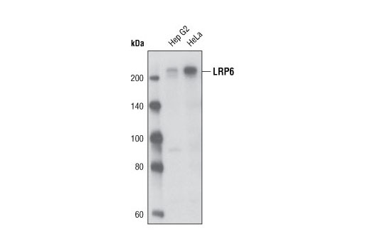 Western blot analysis of extracts from Hep G2 and HeLa cells using LRP6 (C47E12) Rabbit mAb.