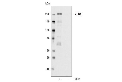 Western blot analysis of extracts from COS cells, mock transfected or transfected with a construct expressing human TCF8/ZEB1, using TCF8/ZEB1 (D80D3) Rabbit mAb.