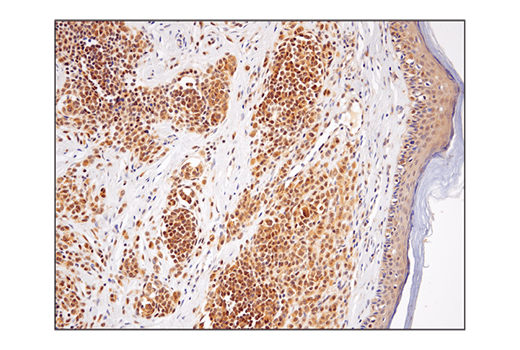 Immunohistochemical analysis of paraffin-embedded human melanoma using using SHP-2 (D50F2) Rabbit mAb.
