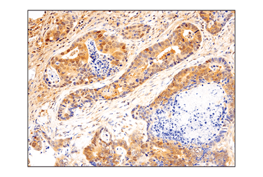 Immunohistochemical analysis of paraffin-embedded human colon carcinoma using SHP-2 (D50F2) Rabbit mAb.