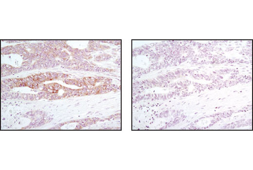 Immunohistochemical analysis of paraffin-embedded human colon carcinoma, untreated (left) or λ phosphatase-treated (right), using Phopsho-eIF2α (Ser51) (D9G8) XP<sup>®</sup> Rabbit mAb.