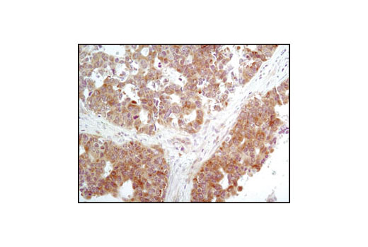 Immunohistochemical analysis of paraffin-embedded human lung carcinoma using Phospho-eIF2α (Ser51) (D9G8) XP<sup>®</sup> Rabbit mAb.