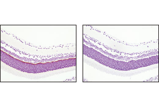 Immunohistochemical analysis of paraffin-embedded rat retina using PSD95 (D74D3) XP<sup>®</sup> Rabbit mAb in the presence of control peptide (left) or antigen-specific peptide (right).