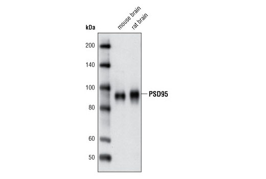 Western blot analysis of extracts from mouse and rat brain using PSD95 (D74D3) XP<sup>®</sup> Rabbit mAb.