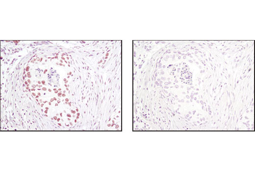 Immunohistochemical analysis of paraffin-embedded human breast carcinoma using CTCF (D31H2) XP<sup>®</sup> Rabbit mAb in the presence of control peptide (left) or antigen-specific peptide (right).