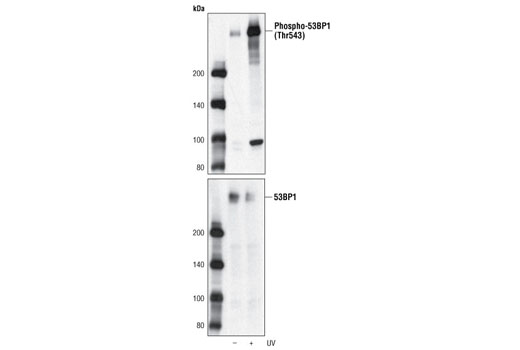 Polyclonal Antibody - Phospho-53BP1 (Thr543) Antibody - Western Blotting, UniProt ID Q12888, Entrez ID 7158 #3428 - Cell Cycle / Checkpoint Control