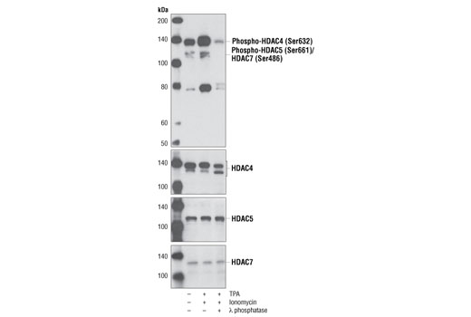 Western blot analysis of extracts from DO11.10 thymocyte hybridoma cells, untreated (-) or treated with TPA (12-O-Tetradecanoylphorbol-13-Acetate) #4174 (0.2 µM, 1 hr; +) and Ionomycin, Calcium Salt #9995 (0.33 µM, 1 hr; +), using Phospho-HDAC4 (Ser632)/HDAC5 (Ser661)/HDAC7 (Ser486) Antibody (upper). Phospho-specificity of the antibody was determined by treating cell extracts with λ phosphatase. Total HDAC proteins were detected using Histone Deacetylase 4 (HDAC4) Antibody #2072, Histone Deacetylase 5 (HDAC5) Antibody #2082 and Histone Deacetylase 7 (HDAC7) Antibody #2882.