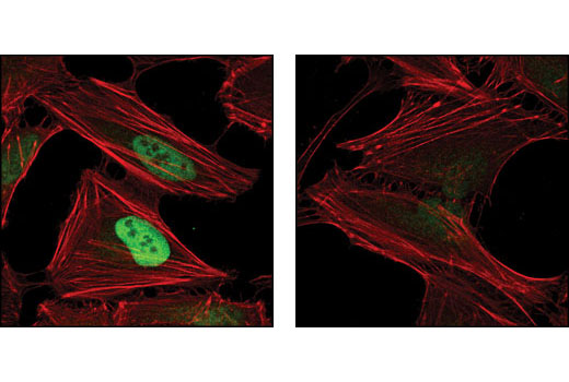 Confocal immunofluorescent analysis of HeLa cells, treated with either 10 μM MG132 (left) or 10 μM MG132 and 1 mM DMOG (right), using Hydroxy-HIF-1α (Pro564) (D43B5) XP<sup>®</sup> Rabbit mAb (green). Actin filaments have been labeled using DY-554 phalloidin (red).