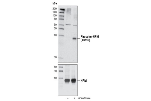 Western blot analysis of extracts of HeLa cells, untreated or nocodazole-treated, using Phospho-NPM (Thr95) Antibody (upper) or NPM Antibody #3542 (lower).