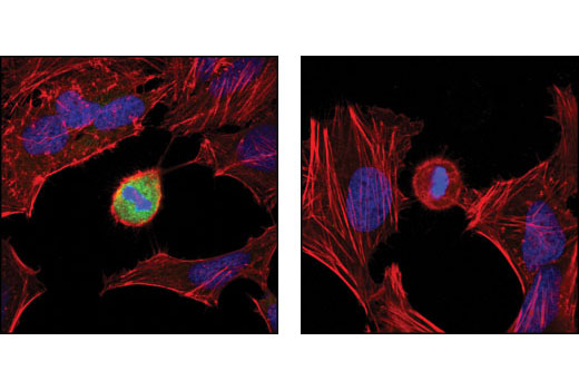 Confocal immunofluorescent analysis of HeLa cells untreated (left) and λ phosphatase-treated (right), using NPM (Thr95) phosphate Antibody (green). Actin filaments have been labeled using DY-554 phalloidin (red). Blue pseudocolor = DRAQ5™ (fluorescent DNA dye).