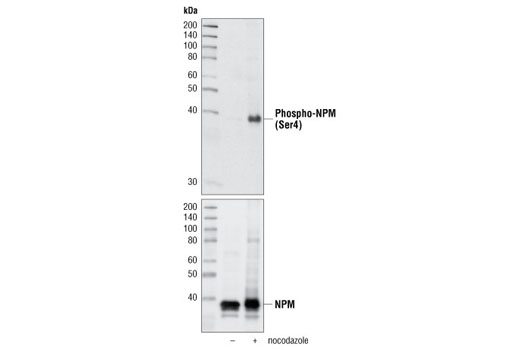 Western blot analysis of extracts of HeLa cells, either untreated or nocodazole-treated, using Phospho-NPM (Ser4) (D19C1) XP<sup>®</sup> Rabbit mAb (upper). Lower panel shows total NPM using NPM Antibody #3542.