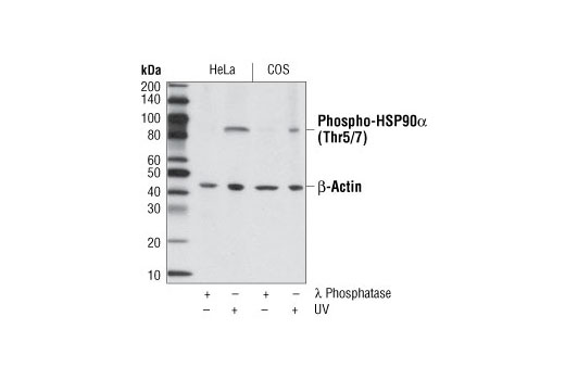 Western blot analysis of extracts from HeLa and COS cells, treated with either λ phosphatase or UV, using Phospho-HSP90α (Thr5/7) Antibody and β-Actin Antibody #4967 as a loading control.