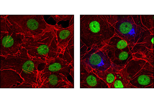 Monoclonal Antibody - HA-Tag (6E2) Mouse mAb (Alexa Fluor® 647 Conjugate) - 100 µl #3444 - Related Products