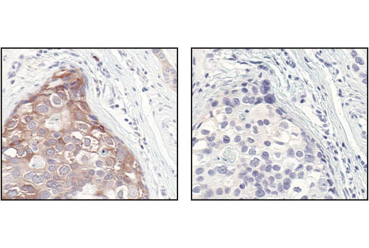 Immunohistochemical analysis of paraffin-embedded human breast carcinoma using c-Rel Antibody in the presence of control peptide (left) or antigen-specific peptide (right).