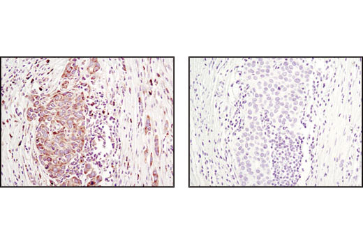 Immunohistochemical analysis of paraffin-embedded human breast carcinoma using Methyl-PABP1 (Arg455/Arg/460) (C60A10) Rabbit mAb in the presence of doubly unmethylated PABP1 control peptide (left) or antigen-specific peptide (right).