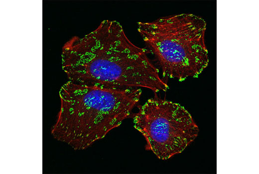 Confocal immunofluorescent analysis of A549 cells using Integrin β5 (D24A5) Rabbit mAb (green). Actin filaments were labeled using DY-554 phalloidin (red). Blue pseudocolor = DRAQ5® #4084 (fluorescent DNA dye).
