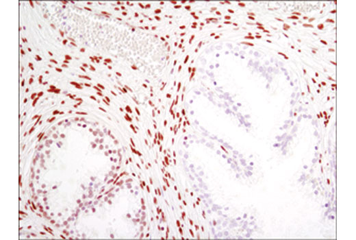 Immunohistochemical analysis of paraffin-embedded human prostate carcinoma using MeCP2 (D4F3) XP<sup>®</sup> Rabbit mAb.