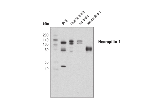 Monoclonal Antibody - Neuropilin-1 (D62C6) Rabbit mAb - Immunoprecipitation, Western Blotting, UniProt ID O14786, Entrez ID 8829 #3725 - Primary Antibodies