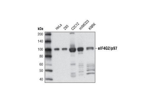 Monoclonal Antibody - eIF4G2/p97 (D1A10) Rabbit mAb - Immunoprecipitation, Western Blotting, UniProt ID P78344, Entrez ID 1982 #3468