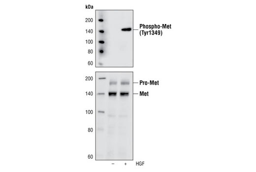 Western blot analysis of cell lysates of H4IIE cells untreated or treated with HGF, using Phospho-Met (Tyr1349) (130H2) Rabbit mAb (upper), or Met (25H2) Mouse mAb #3127 (lower).